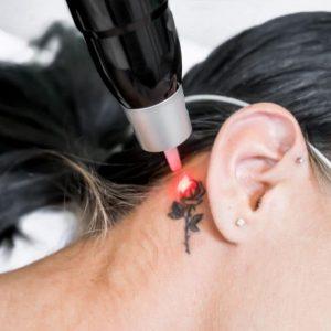 Todo lo que necesitas saber sobre eliminar tu tatuaje con Láser