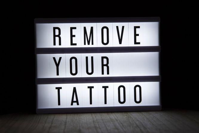 eliminar tatuajes laser
