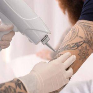 ¿Cuánto cuesta borrar un tatuaje?