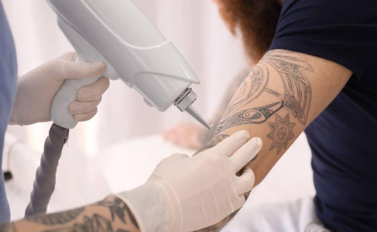 precio eliminar tatuajes